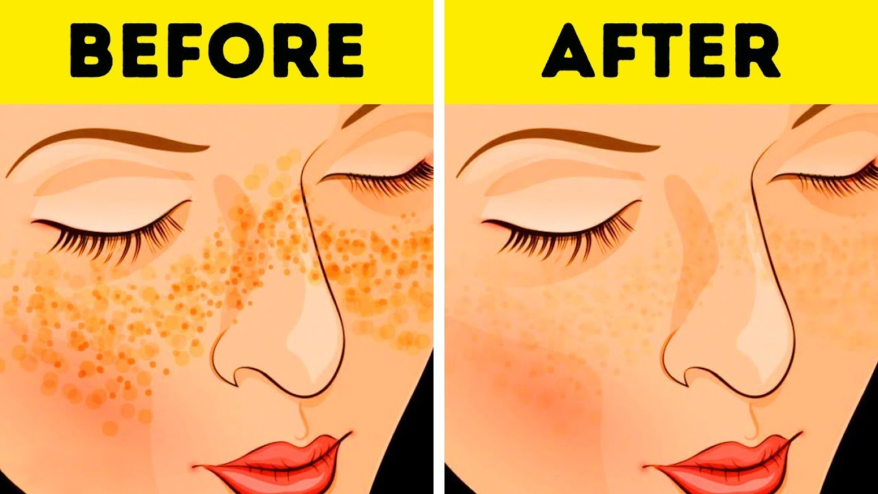 Extraordinary Tricks to Have a Beautiful and Healthy Skin