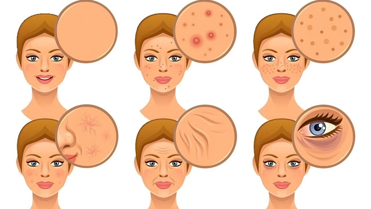 What Are The Foods That Damage Your Skin